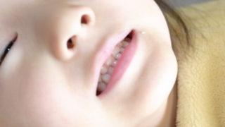 子供の歯並びのガタガタが治った話