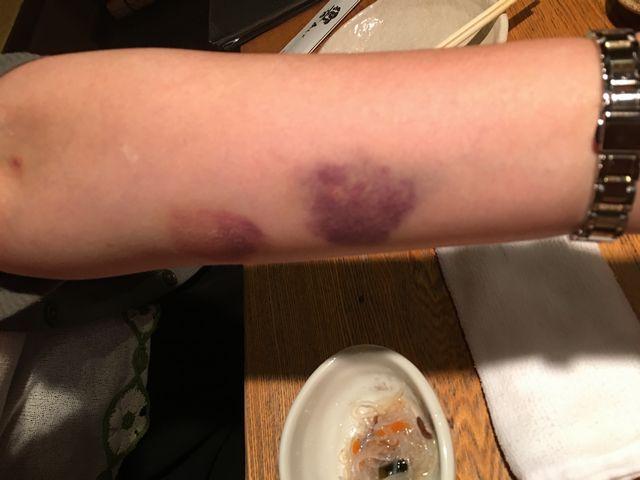 紫斑 血小板 減少 病 性 性 血栓